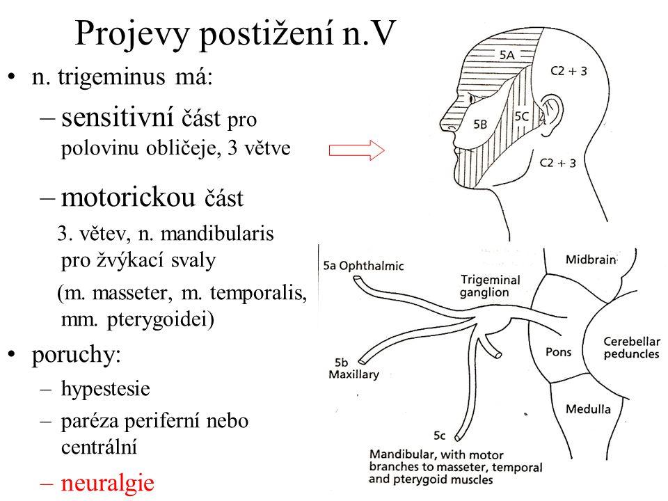 Projevy postižení n.V n. trigeminus má: –sensitivní část pro polovinu obličeje, 3 větve –motorickou část 3. větev, n. mandibularis pro žvýkací svaly (