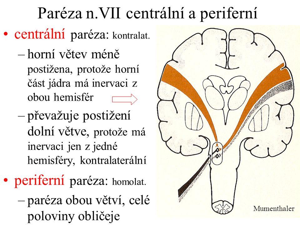 Paréza n.VII centrální a periferní centrální paréza: kontralat. –horní větev méně postižena, protože horní část jádra má inervaci z obou hemisfér –pře
