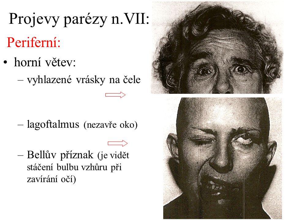 Projevy parézy n.VII: Periferní: horní větev: –vyhlazené vrásky na čele –lagoftalmus (nezavře oko) –Bellův příznak (je vidět stáčení bulbu vzhůru při