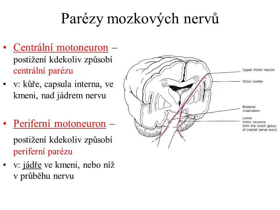 Parézy mozkových nervů Centrální motoneuron – postižení kdekoliv způsobí centrální parézu v: kůře, capsula interna, ve kmeni, nad jádrem nervu Perifer