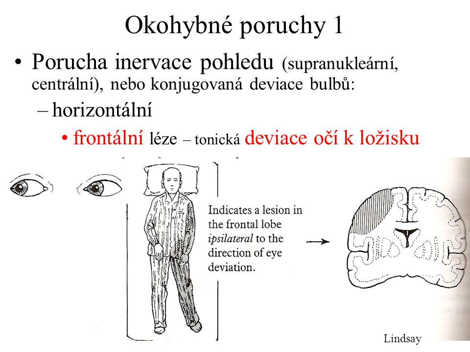 Okohybné poruchy 1 Porucha inervace pohledu (supranukleární, centrální), nebo konjugovaná deviace bulbů: –horizontální frontální léze – tonická deviac