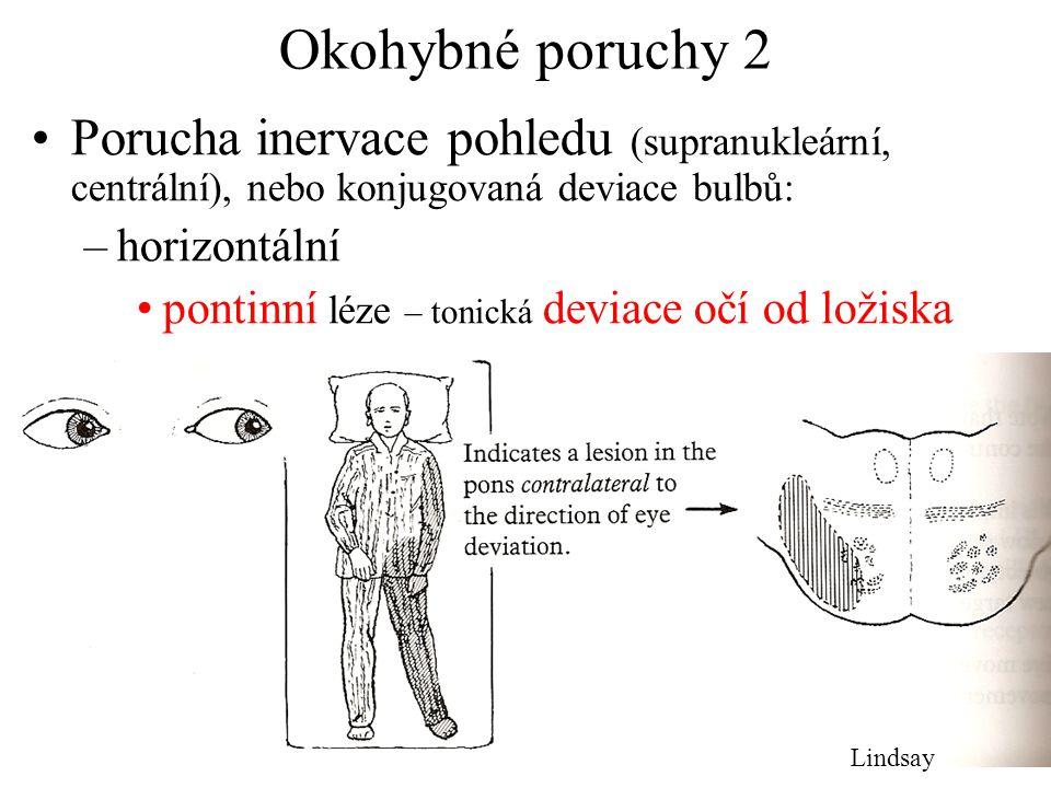 Okohybné poruchy 2 Porucha inervace pohledu (supranukleární, centrální), nebo konjugovaná deviace bulbů: –horizontální pontinní léze – tonická deviace
