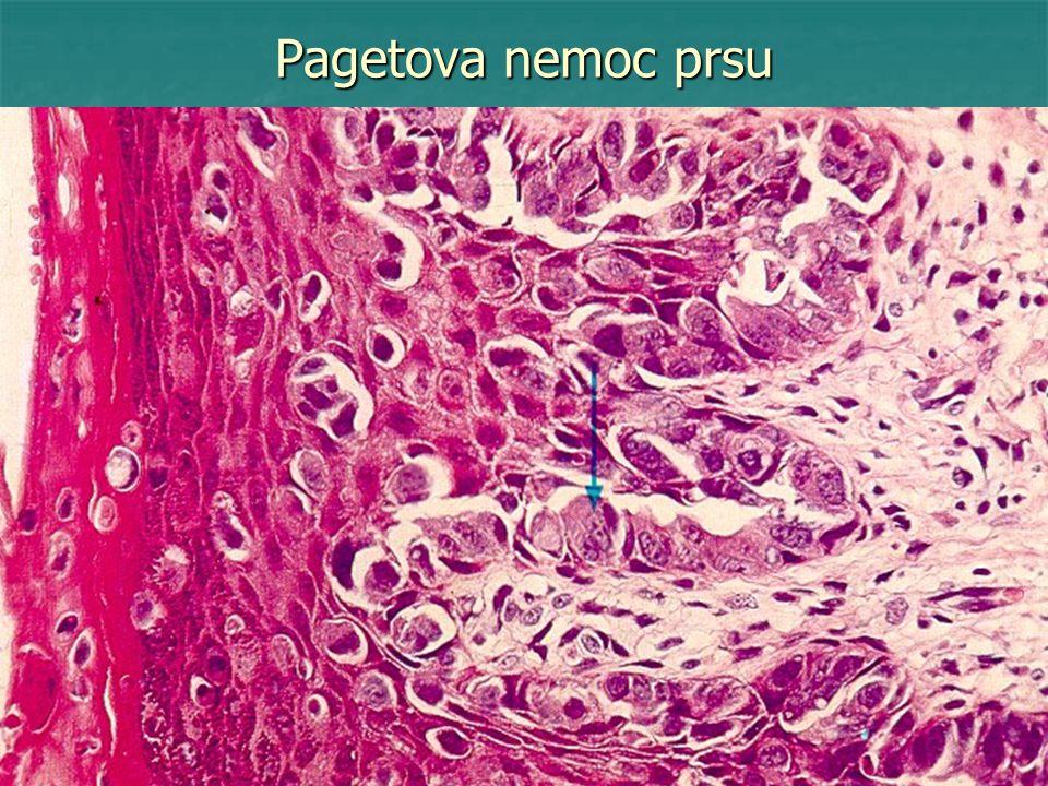 Pagetova nemoc prsu