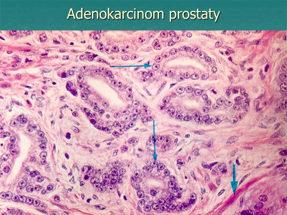 Adenokarcinom prostaty