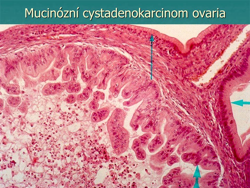 Mucinózní cystadenokarcinom ovaria