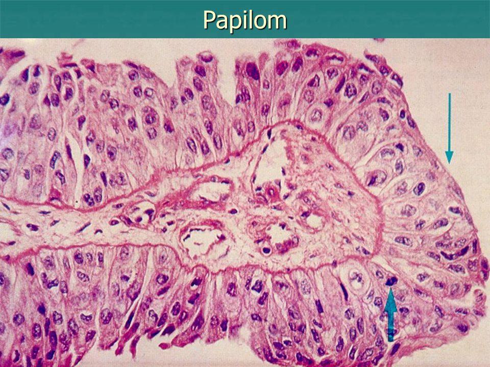 Verukózní karcinom