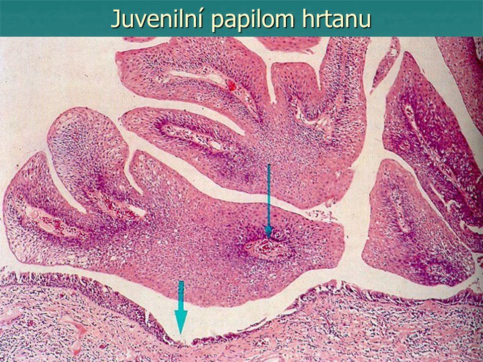 Poznámky k názvosloví epiteliálních nádorů Od karcinomů z přechodného epitelu (uroteliálních) je třeba odlišit karcinom z přechodních buněk (z přechodných buněčných zón mezi dlaždicovým a cylindrickým epitelem – kolizní nádor), které obvykle jeví vyšší stupeň malignity (jícen, děložní čípek, rektum).