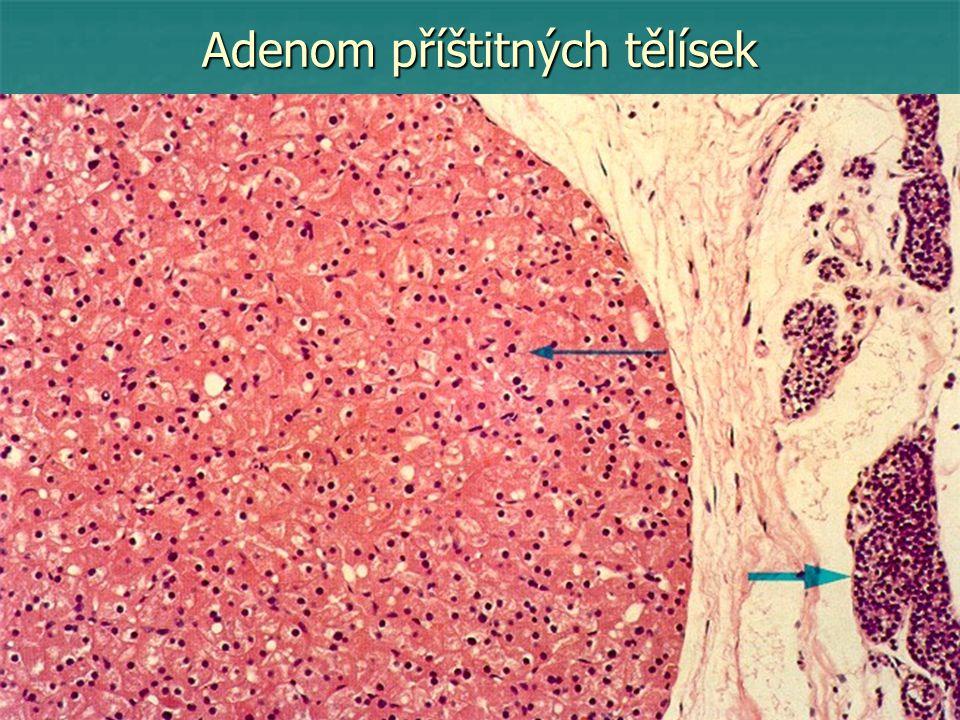 Serózní cystadenokarcinom ovaria