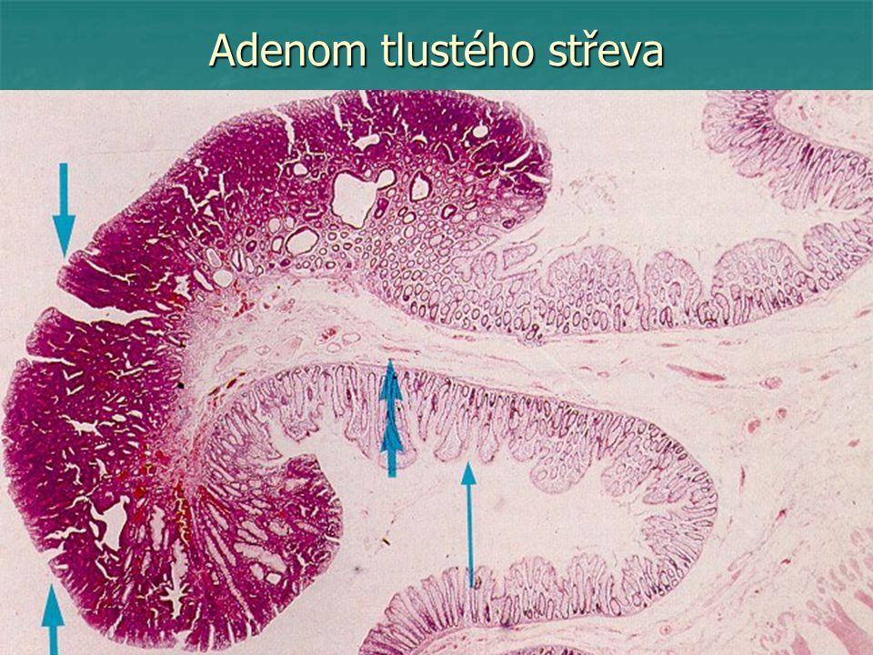 Bronchioloalveolární karcinom plic
