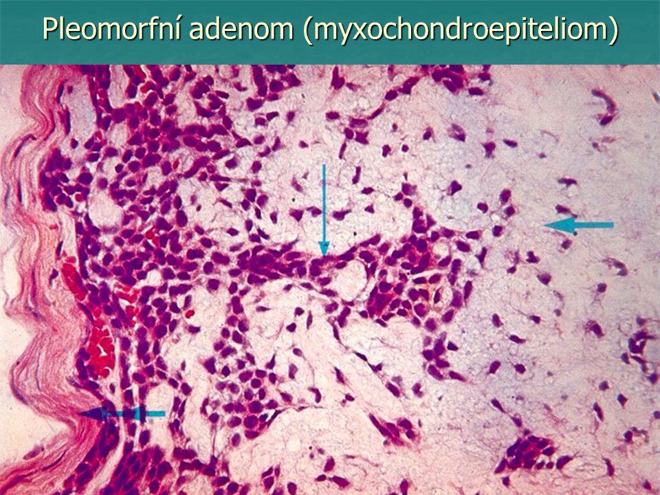 Dělení maligních epiteliálních nádorů C – Maligní nádory krycího epitelu - epidermoidní karcinomy (bazocelulární, spinocelulární, - epidermoidní karcinomy (bazocelulární, spinocelulární, verukózní) verukózní) - papilokarcinomy (přechodného epitelu) - papilokarcinomy (přechodného epitelu) D – Maligní nádory žlazového epitelu (adenokarcinomy) - tubulární - tubulární - folikulární - folikulární - acinární - acinární - trabekulární - trabekulární - kribriformní - kribriformní - adenomatoidně cystický - adenomatoidně cystický - solidní - solidní - solidně-alveolární - solidně-alveolární - z prstencových buněk - z prstencových buněk - difuzní (skirhus, gelatinózní) - difuzní (skirhus, gelatinózní)