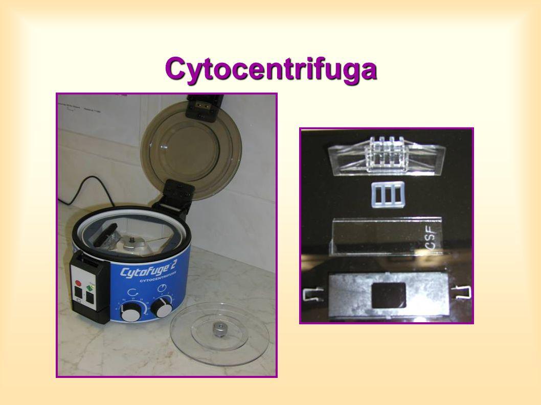 Cytocentrifuga