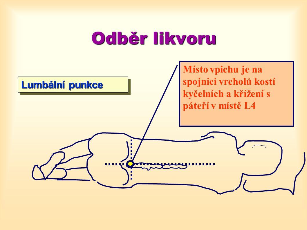 Odběr likvoru Místo vpichu je na spojnici vrcholů kostí kyčelních a křížení s páteří v místě L4 Lumbální punkce