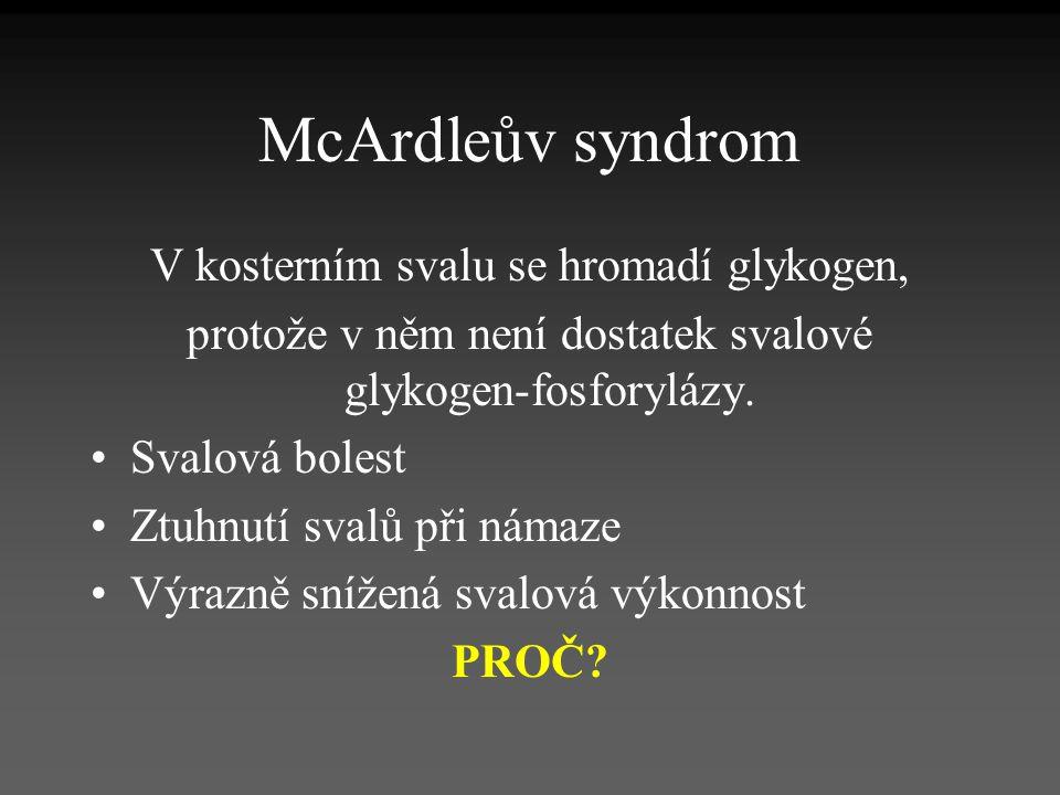 McArdleův syndrom V kosterním svalu se hromadí glykogen, protože v něm není dostatek svalové glykogen-fosforylázy. Svalová bolest Ztuhnutí svalů při n