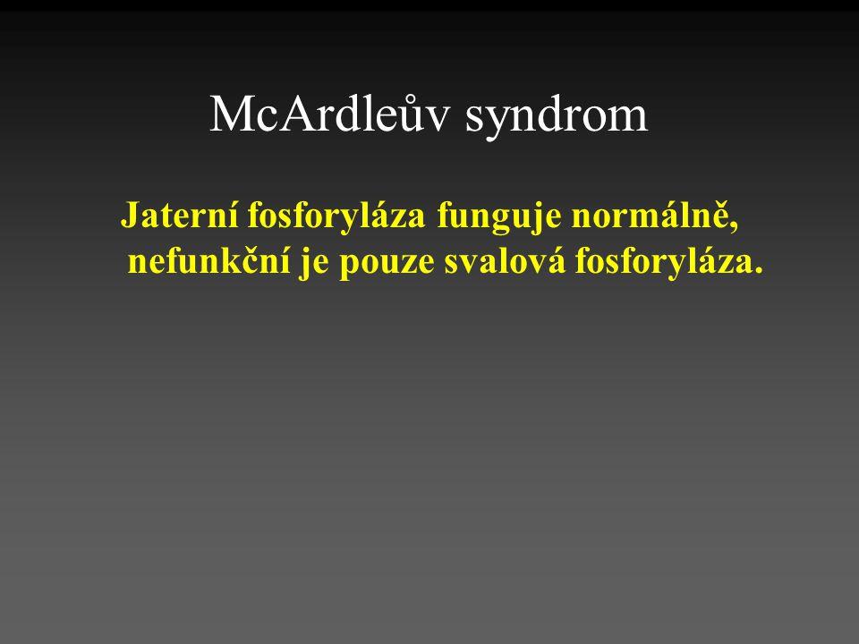 McArdleův syndrom Jaterní fosforyláza funguje normálně, nefunkční je pouze svalová fosforyláza.