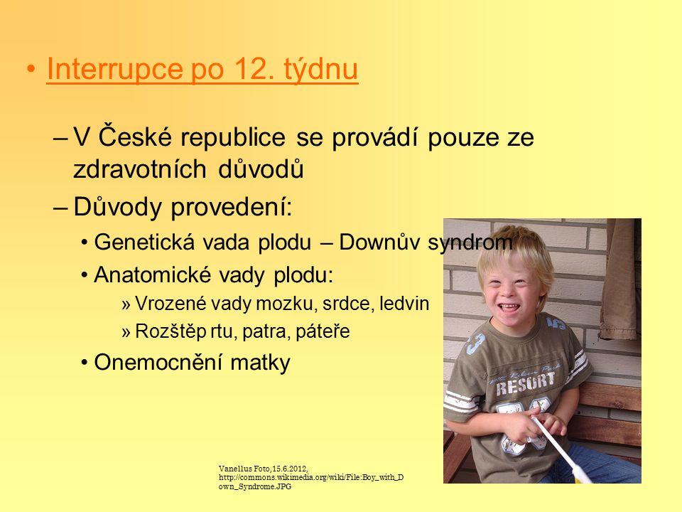 Interrupce po 12. týdnu –V České republice se provádí pouze ze zdravotních důvodů –Důvody provedení: Genetická vada plodu – Downův syndrom Anatomické