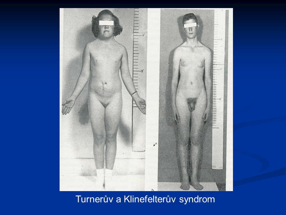 Turnerův a Klinefelterův syndrom