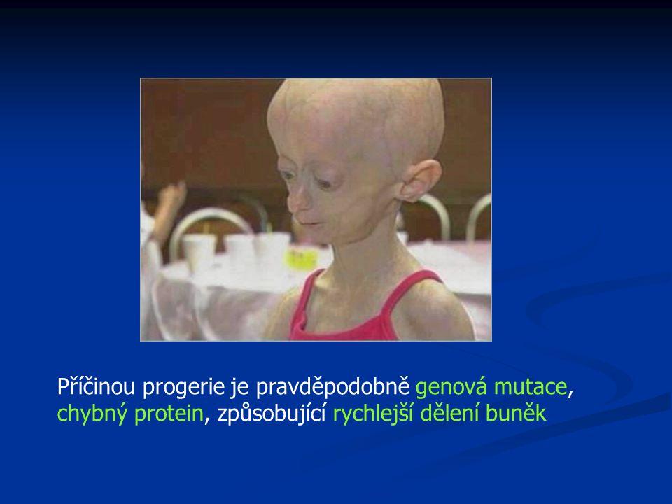Příčinou progerie je pravděpodobně genová mutace, chybný protein, způsobující rychlejší dělení buněk