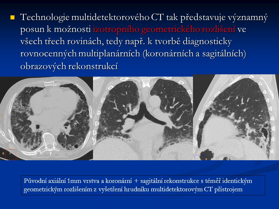 Technologie multidetektorového CT tak představuje významný posun k možnosti izotropního geometrického rozlišení ve všech třech rovinách, tedy např. k