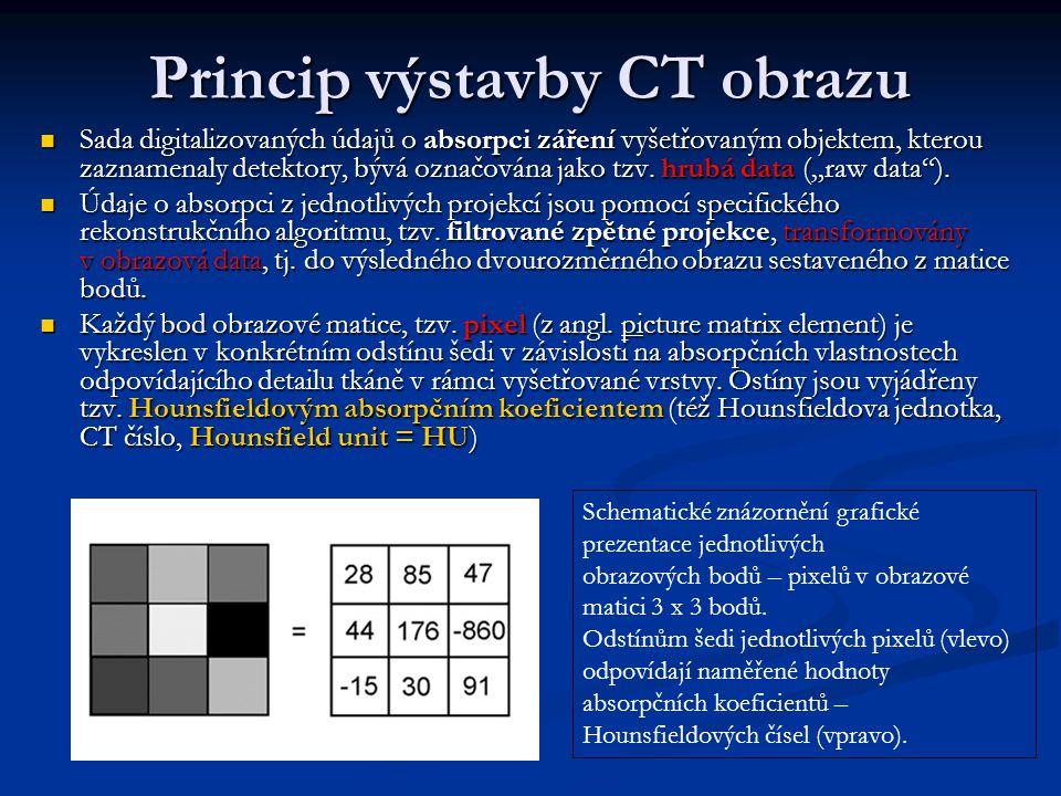 Princip výstavby CT obrazu Sada digitalizovaných údajů o absorpci záření vyšetřovaným objektem, kterou zaznamenaly detektory, bývá označována jako tzv