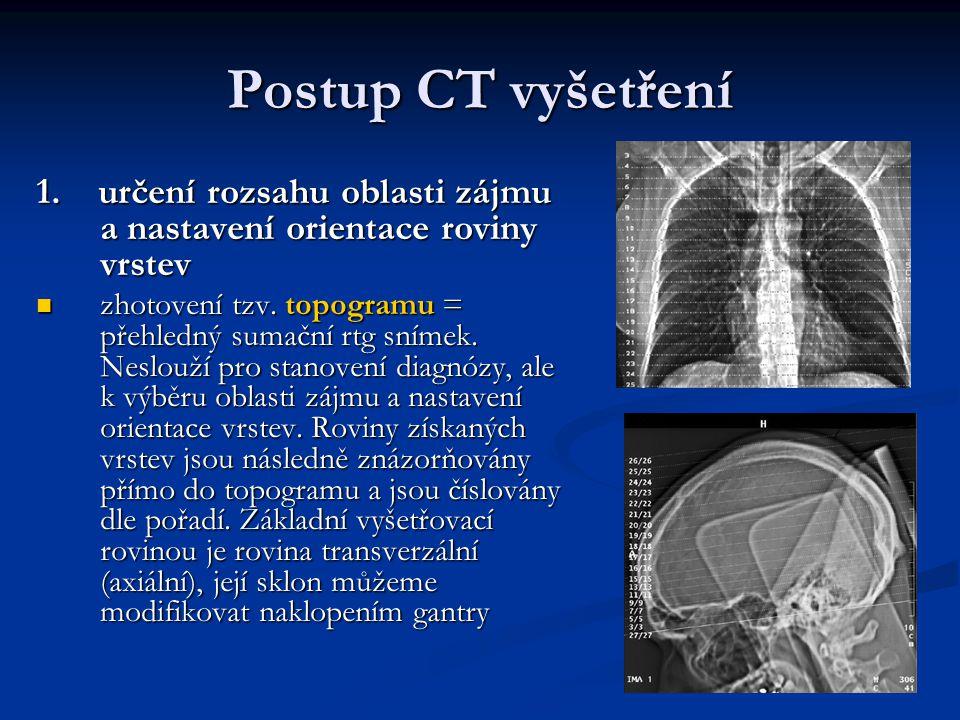 Postup CT vyšetření 1. určení rozsahu oblasti zájmu a nastavení orientace roviny vrstev zhotovení tzv. topogramu = přehledný sumační rtg snímek. Neslo