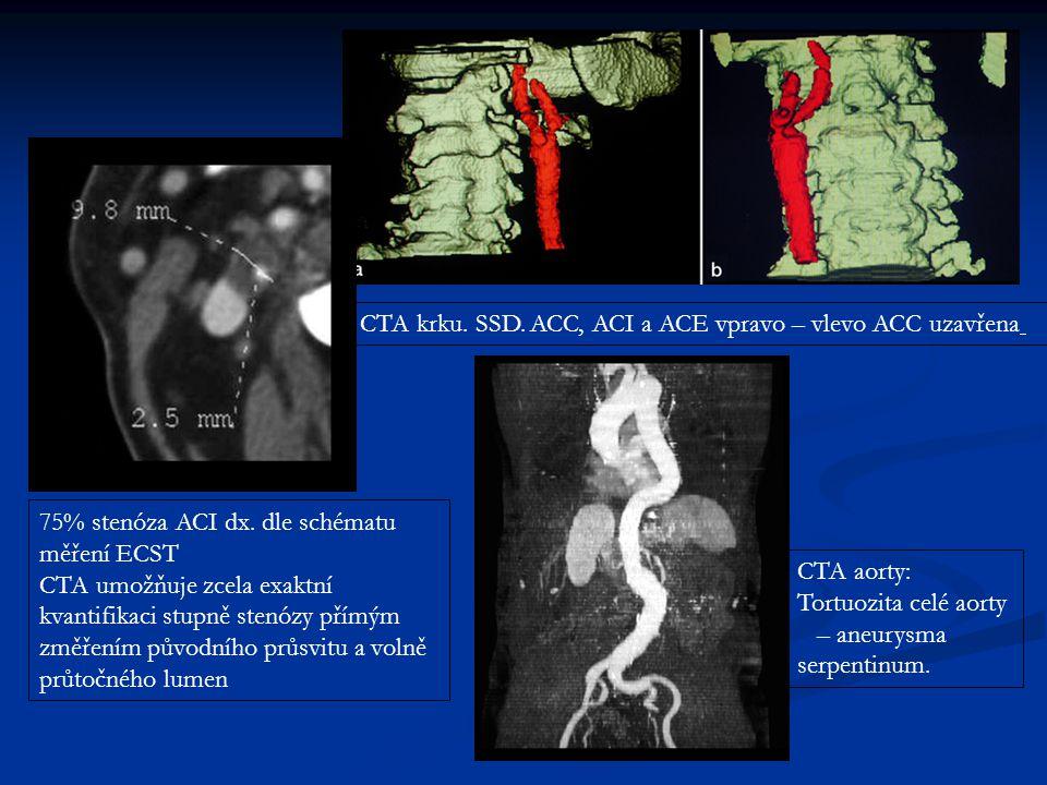 CTA krku. SSD. ACC, ACI a ACE vpravo – vlevo ACC uzavřena 75% stenóza ACI dx. dle schématu měření ECST CTA umožňuje zcela exaktní kvantifikaci stupně