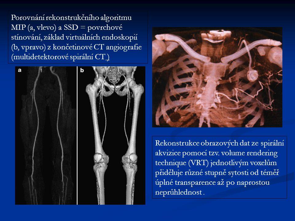 Porovnání rekonstrukčního algoritmu MIP (a, vlevo) a SSD = povrchové stínování, základ virtuálních endoskopií (b, vpravo) z končetinové CT angiografie