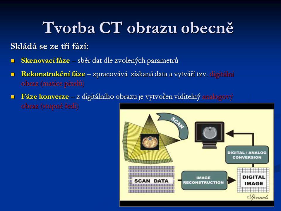 Tvorba CT obrazu obecně Skládá se ze tří fází: Skenovací fáze – sběr dat dle zvolených parametrů Skenovací fáze – sběr dat dle zvolených parametrů Rek