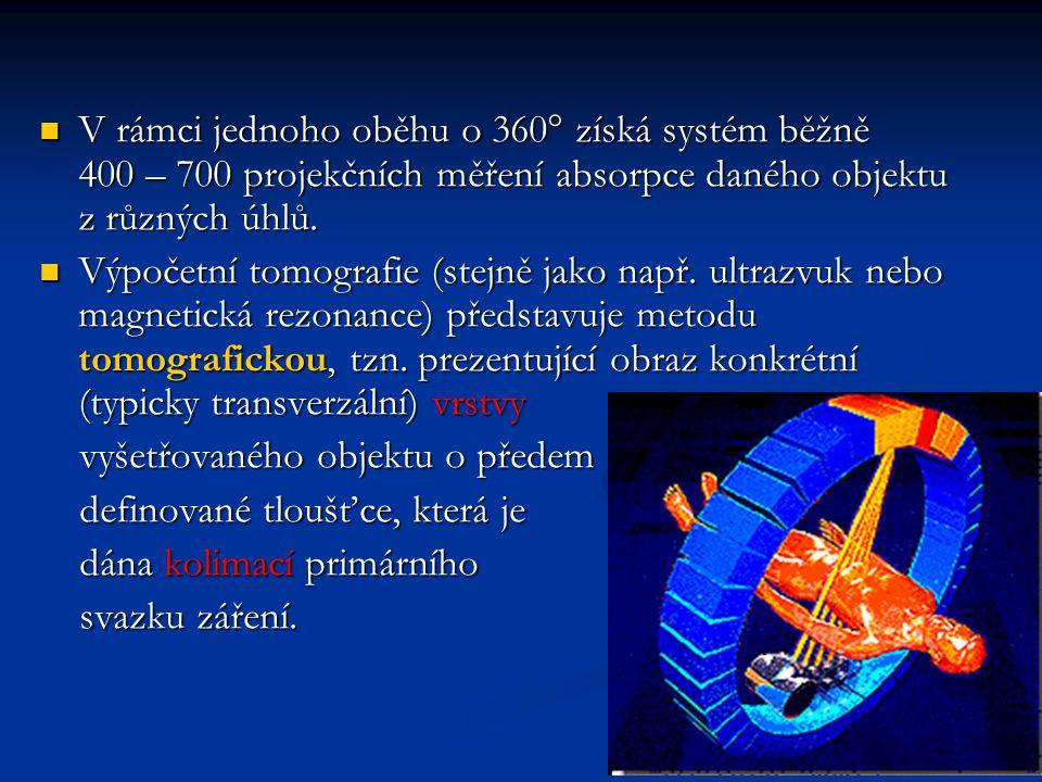 V rámci jednoho oběhu o 360  získá systém běžně 400 – 700 projekčních měření absorpce daného objektu z různých úhlů. V rámci jednoho oběhu o 360  zí