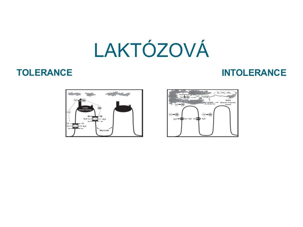 LAKTÓZOVÁ TOLERANCE INTOLERANCE