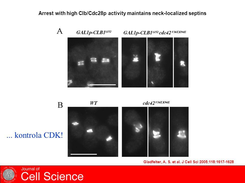 Gladfelter, A. S. et al. J Cell Sci 2005;118:1617-1628 Arrest with high Clb/Cdc28p activity maintains neck-localized septins... kontrola CDK!