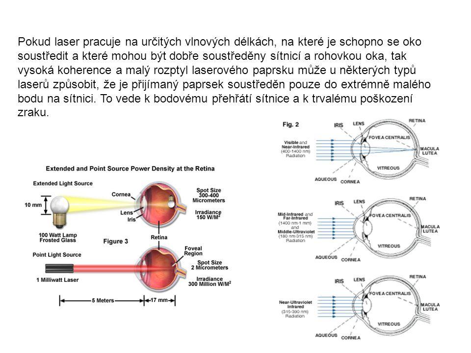 Poškození oka laserem Vlnová délka 180–315 nm (UV-B, UV-C)fotokeratitida (zánět rohovky) 315–400 nm (UV-A)fotochemický zákal oční čočky 400–780 nm (visible)fotochemické poškození sítnice 780–1400 nm (near-IR)zákal, popálení sítnice 1.4–3.0μm (IR)Proteiny v komorovém moku, zákal, popálení sítnice 3.0 μm–1 mmpopálení sítnice