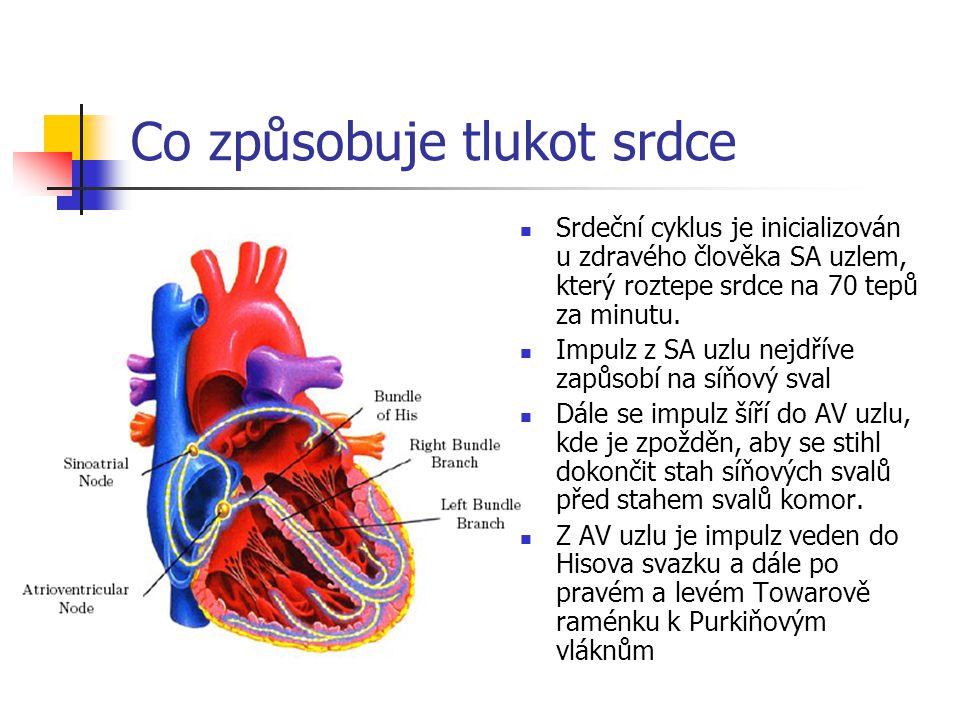 Co způsobuje tlukot srdce Srdeční cyklus je inicializován u zdravého člověka SA uzlem, který roztepe srdce na 70 tepů za minutu. Impulz z SA uzlu nejd