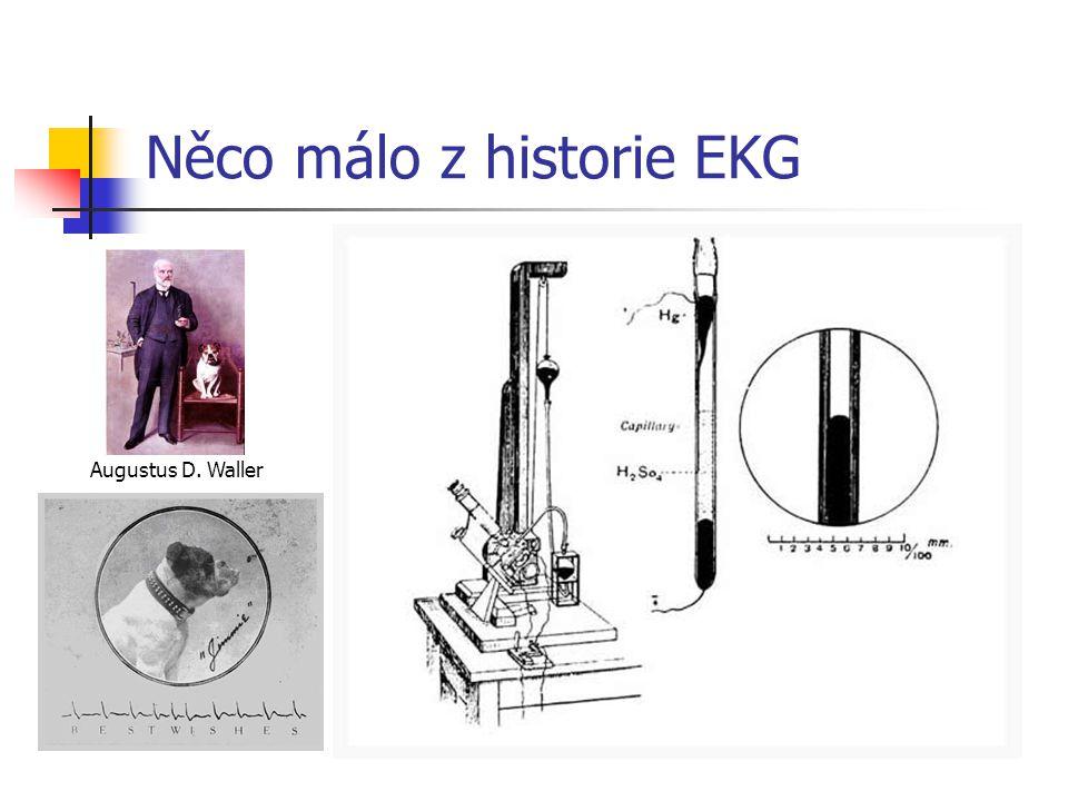 Wallerovo EKG Jako první použil termín elektrokardiogram britský fiziolog Augustus D.