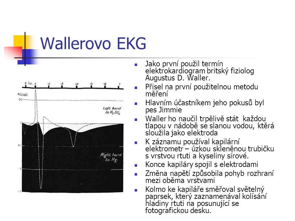 Wallerovo EKG Jako první použil termín elektrokardiogram britský fiziolog Augustus D. Waller. Přisel na první použitelnou metodu měření Hlavním účastn