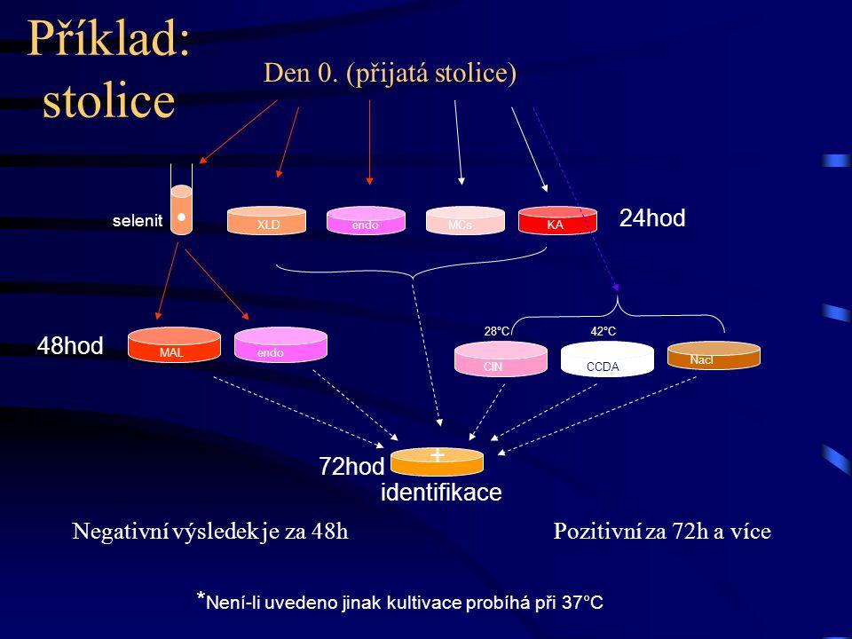 Den 0. (přijatá stolice) Negativní výsledek je za 48h Pozitivní za 72h a více selenit 24hod 48hod identifikace endo XLD MAL MCs KA Nacl CCDA CIN + 72h