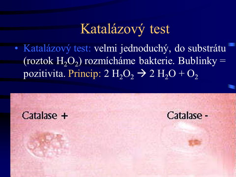 Katalázový test Katalázový test: velmi jednoduchý, do substrátu (roztok H 2 O 2 ) rozmícháme bakterie. Bublinky = pozitivita. Princip: 2 H 2 O 2  2 H