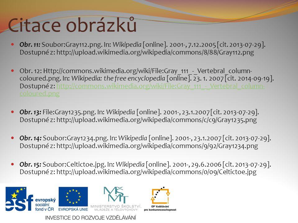 Citace obrázků Obr. 11: Soubor:Gray112.png. In: Wikipedia [online]. 2001-, 7.12.2005 [cit. 2013-07-29]. Dostupné z: http://upload.wikimedia.org/wikipe