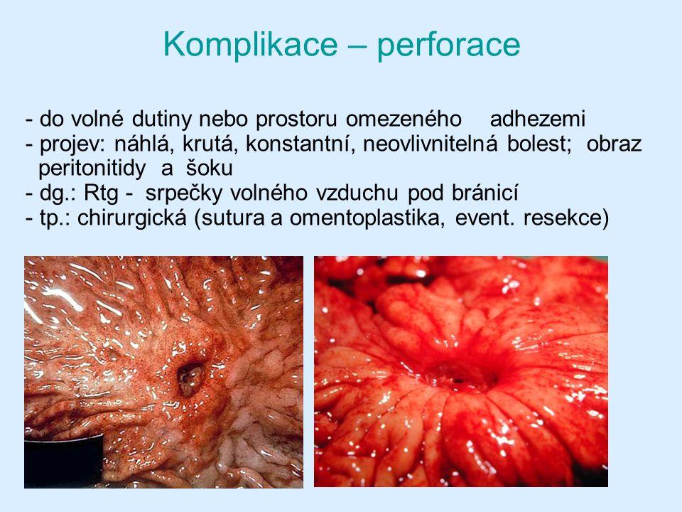 - do volné dutiny nebo prostoru omezeného adhezemi - projev: náhlá, krutá, konstantní, neovlivnitelná bolest; obraz peritonitidy a šoku - dg.: Rtg - srpečky volného vzduchu pod bránicí - tp.: chirurgická (sutura a omentoplastika, event.