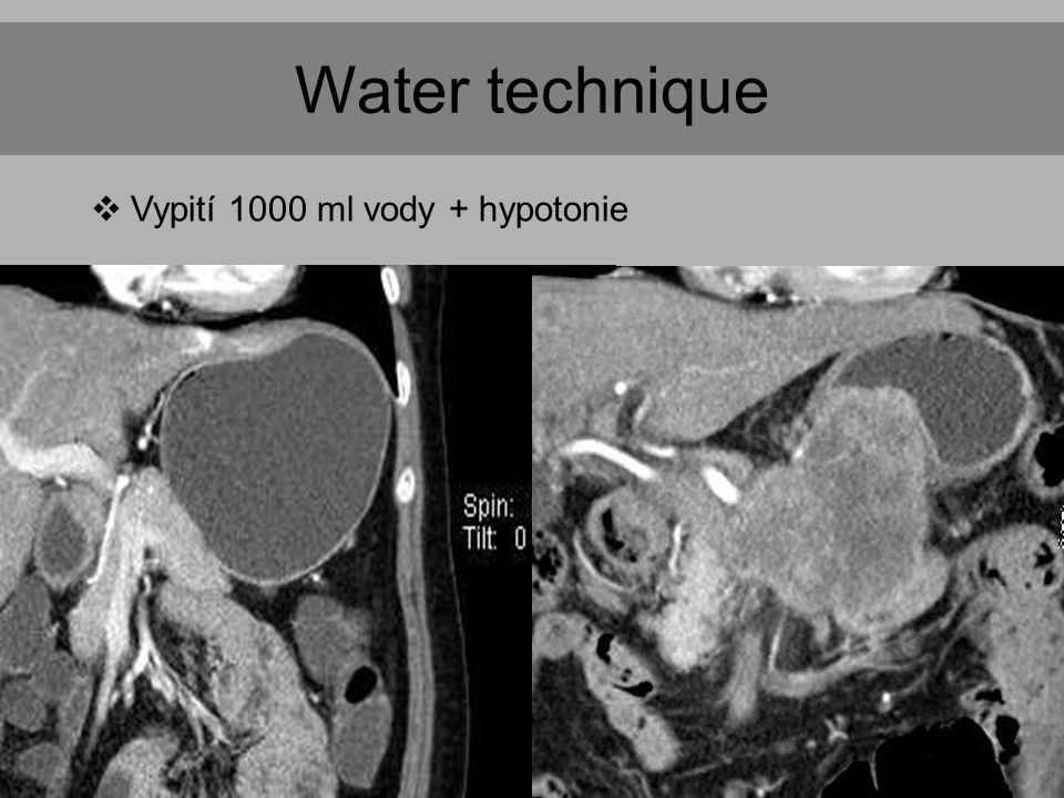 Water technique  Vypití 1000 ml vody + hypotonie
