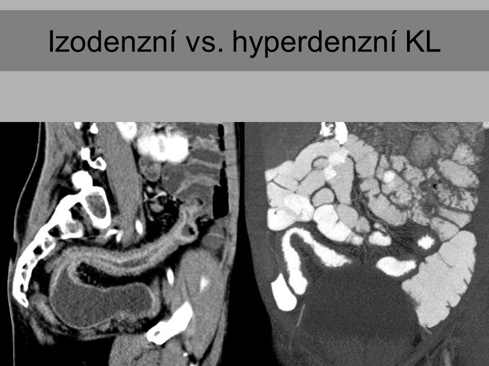 Izodenzní vs. hyperdenzní KL