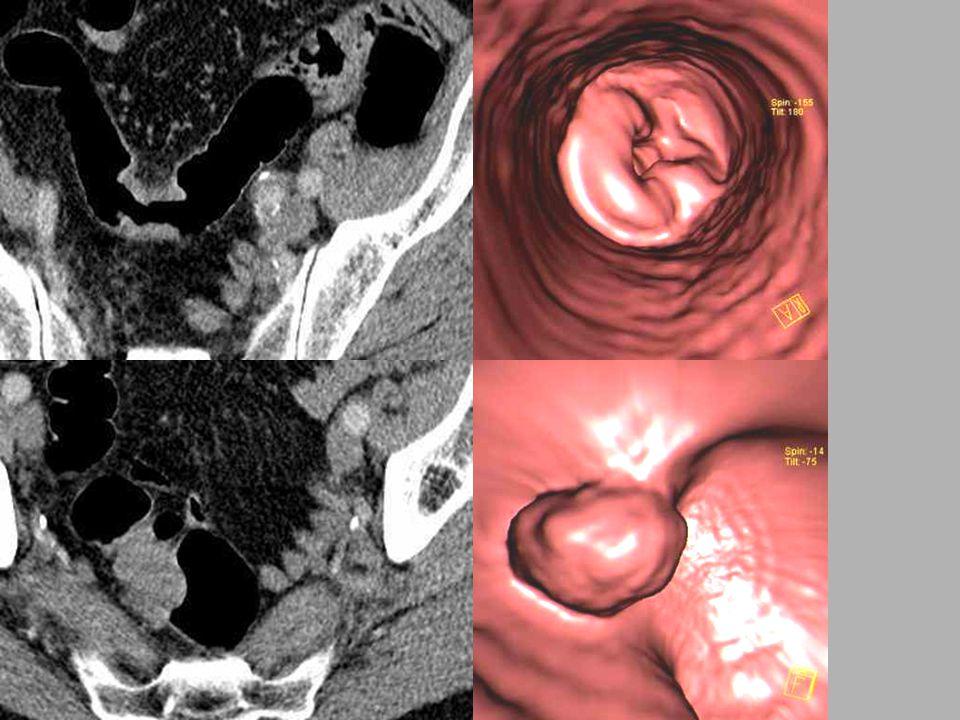 Polypoidní adenoCA Cirkulární adenoCA