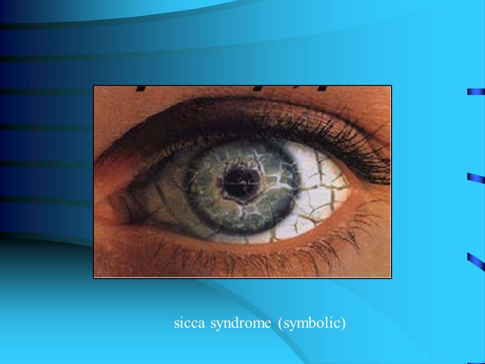 sicca syndrome (symbolic)