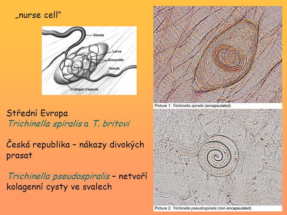 Střední Evropa Trichinella spiralis a T. britovi Česká republika – nákazy divokých prasat Trichinella pseudospiralis – netvoří kolagenní cysty ve sval