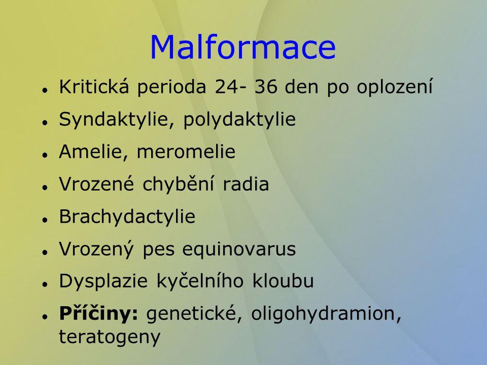 Malformace Kritická perioda 24- 36 den po oplození Syndaktylie, polydaktylie Amelie, meromelie Vrozené chybění radia Brachydactylie Vrozený pes equino