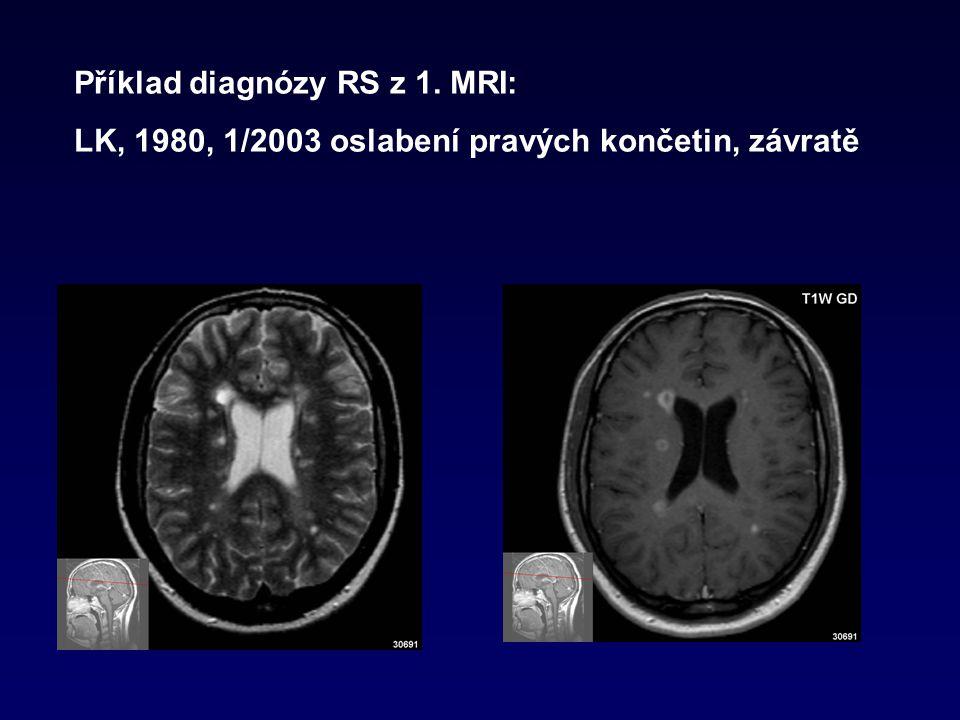 Příklad diagnózy RS z 1. MRI: LK, 1980, 1/2003 oslabení pravých končetin, závratě