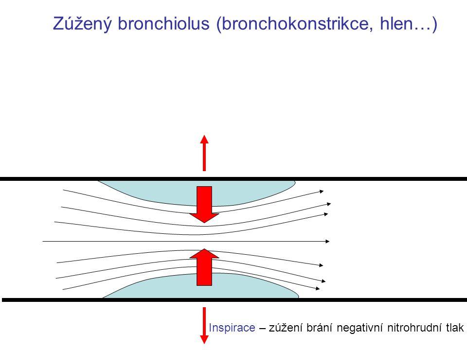 Inspirace – zúžení brání negativní nitrohrudní tlak Zúžený bronchiolus (bronchokonstrikce, hlen…)