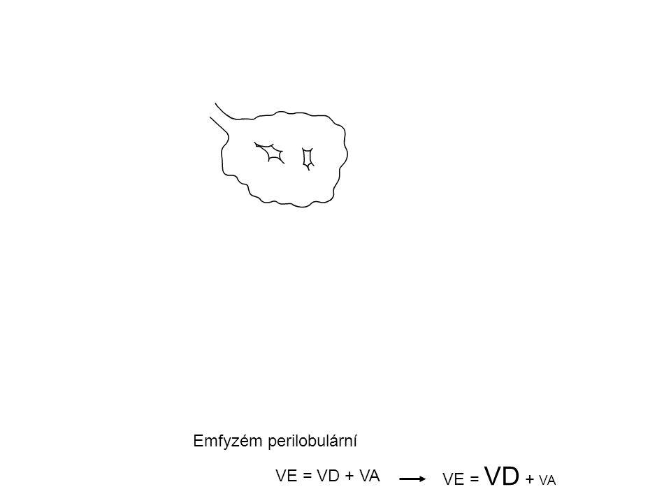 Emfyzém perilobulární VE = VD + VA
