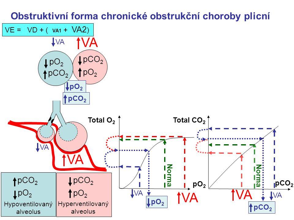 Obstruktivní forma chronické obstrukční choroby plicní pCO 2 pO 2 VE = VD + ( VA1 + VA2 ) Hypoventilovaný alveolus pCO 2 pO 2 Hyperventilovaný alveolus VA Norma pO 2 Total O 2 pO 2 VA Norma pCO 2 Total CO 2 pCO 2 pO 2 pCO 2 pO 2 pCO 2 pO 2