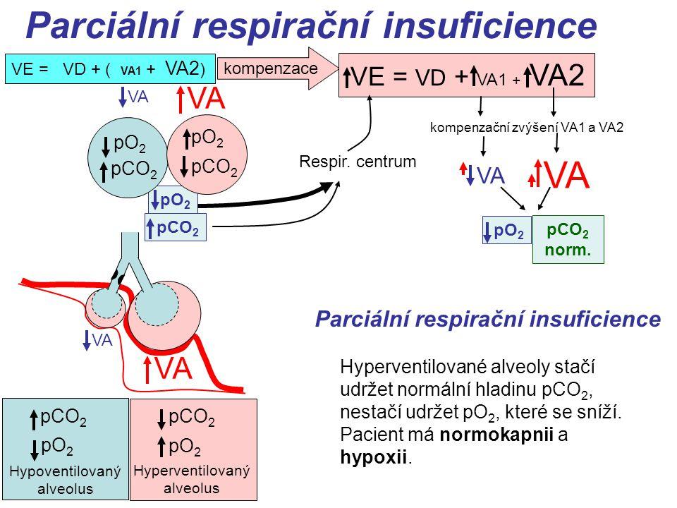 Parciální respirační insuficience pCO 2 pO 2 VE = VD + ( VA1 + VA2 ) Hypoventilovaný alveolus pCO 2 pO 2 Hyperventilovaný alveolus VA pO 2 pCO 2 Respir.
