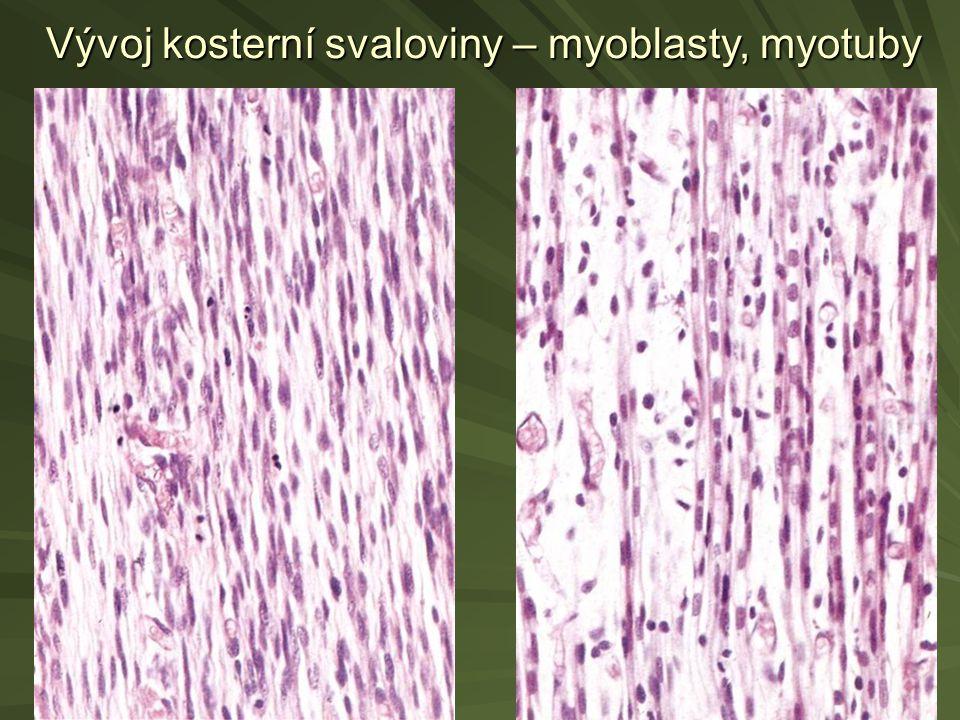 Vývoj kosterní svaloviny – myoblasty, myotuby